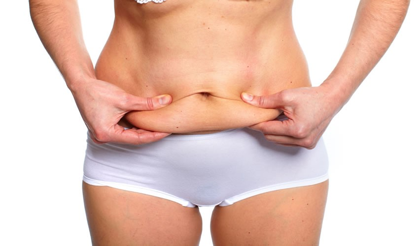 Abdominoplastika2