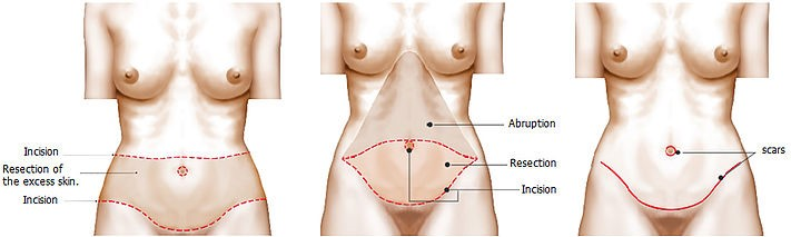 Abdominoplastika3